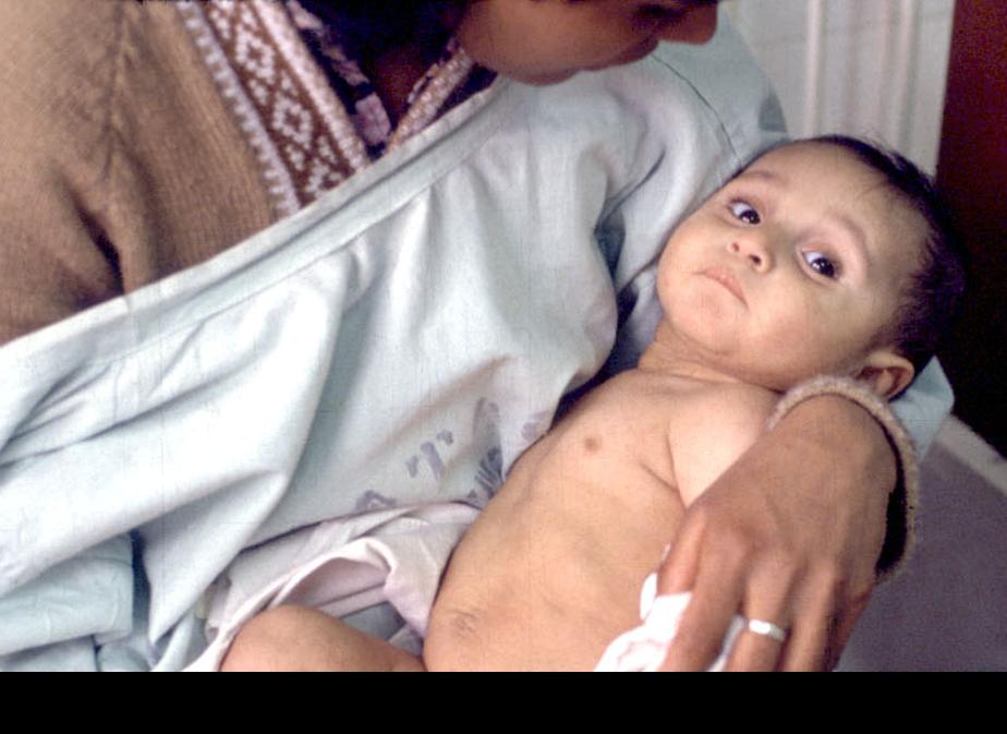 Resultado de imagen de niño deshidratado sintomas